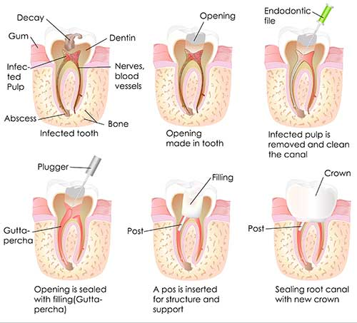 Oxford Root Canal
